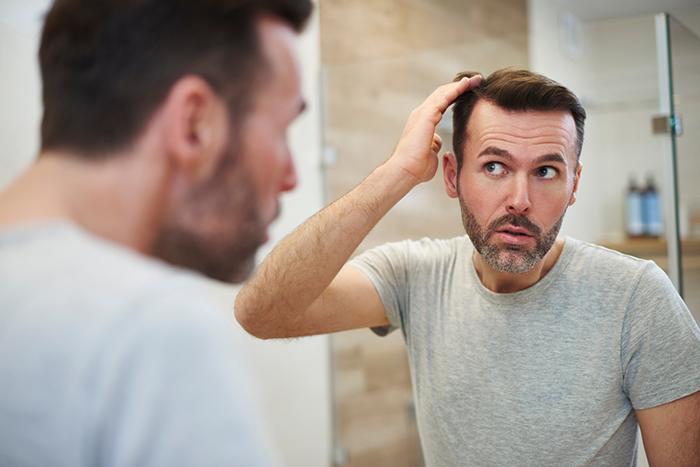 alopecia caída del cabello